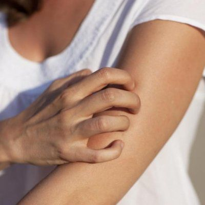 7 Ways to Get Rid of That Never-Ending Mosquito Itch ...
