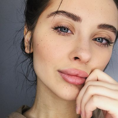 All You Need to Know about Botox for Women Who Want to Look Younger Instantly ...